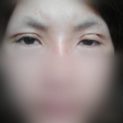 双眼皮手术失败案例展示