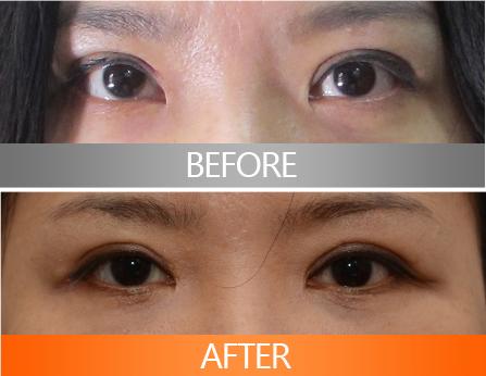 韩国eve医院修眼角案例对比
