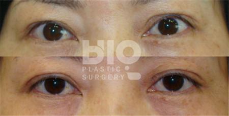 BIO医院双眼皮修复案例