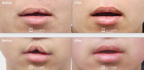 韩国MVP医院唇腭裂嘴唇修复手术效果