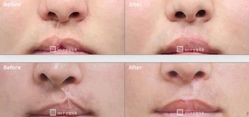 韩国MVP唇腭裂人中修复手术案例