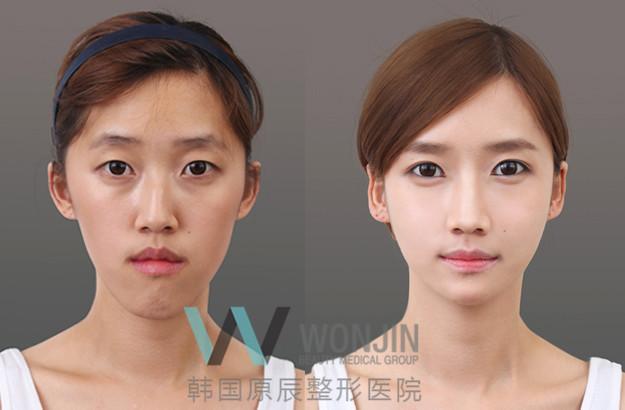 韩国原辰整形外科脂肪填充对比案例