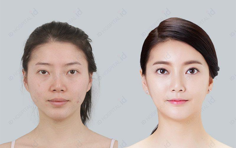 韩国ID脂肪填充前后对比图