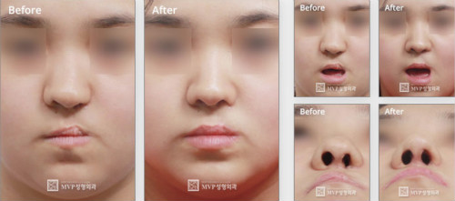 鼻子2次修复案例图