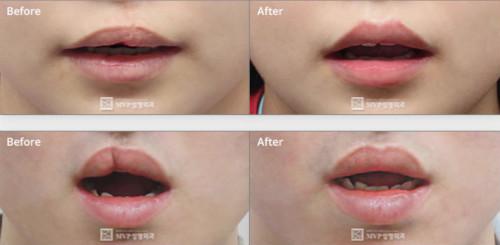 嘴唇2次修复案例图