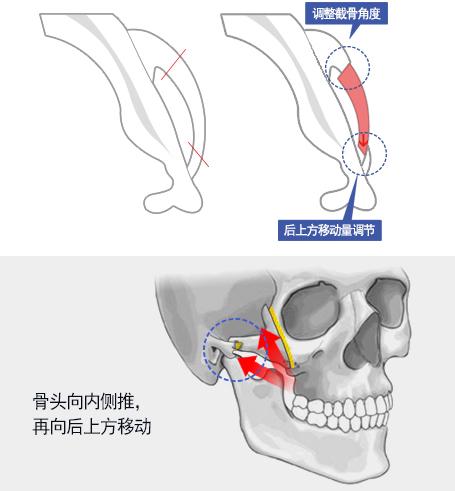 菲斯莱茵颧骨整形细节分析