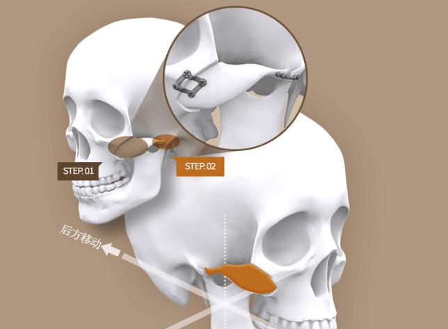 白汀桓颧骨修复手术示意图
