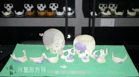 白汀桓颧骨修复打印模型图