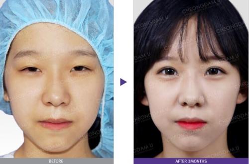 韩国清潭优眼部综合整形前后对比照片