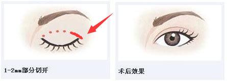 韩国纯真整形双眼皮示意图