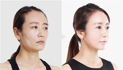 面部轮廓手术案例