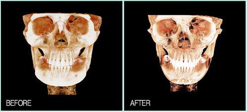 李真秀轮廓整形CT照片