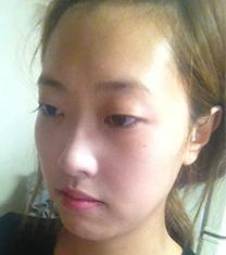 韩国那木眼部手术案例