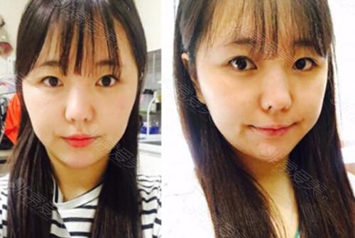 韩国ID轮廓整形术前照片