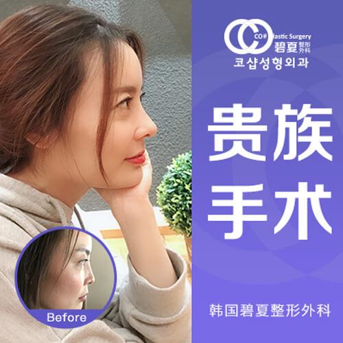 碧夏鼻基底整形手术案例