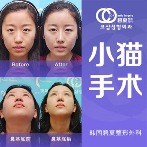 碧夏鼻基底手术案例