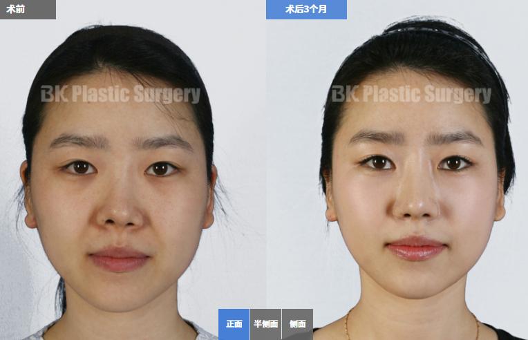 韩国BK整形外科官网案例