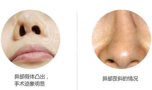 鼻部整形不得不修复的两大情况