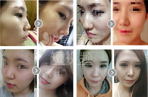 韩国will医院海量鼻部修复案例