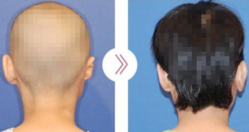 郑在皓耳整形手术背面案例图