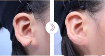 郑在皓耳整形手术案例