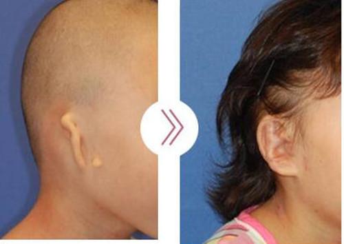 韩国profire医院重度小耳畸形案例