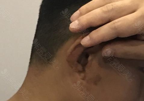 耳萎缩畸形示意图