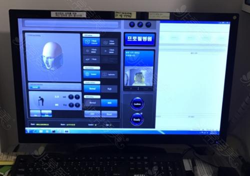 小耳畸形矫正3DCT假想图
