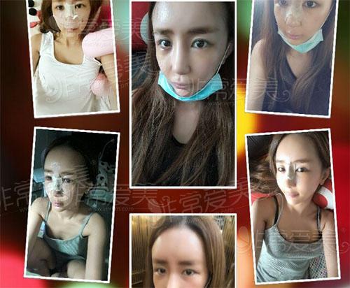 姜昌均隆鼻前后过程恢复图