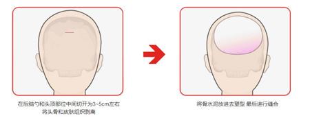 后脑勺手术示意图