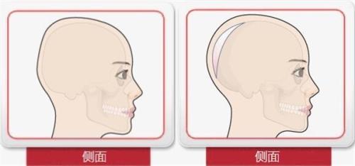 骨水泥填充后脑勺侧面卡通示意图