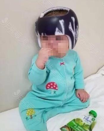 婴儿头型矫正示意图
