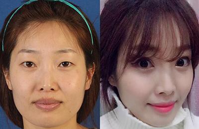 韩国BK医院面部综合整形前后对比照
