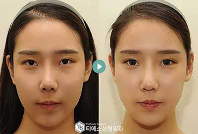 双眼皮修复手术对比案例