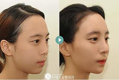 鼻部整形手术对比案例