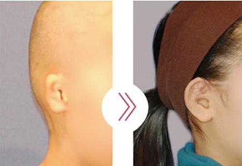 韩国profile小耳畸形手术图片