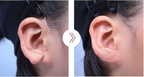 韩国profile耳垂矫正手术图片
