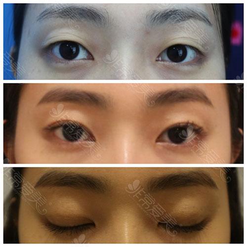 韩国纯真整形医院双眼皮手术案例