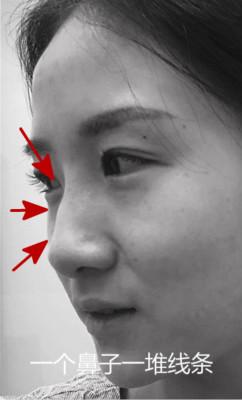 韩国鼻综合术后效果好吗