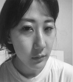 韩国dreamline整形外科大小眼矫正手术案例