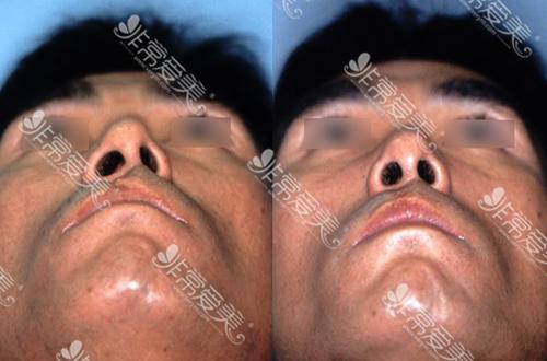 江南三星先天性鼻畸形手术案例