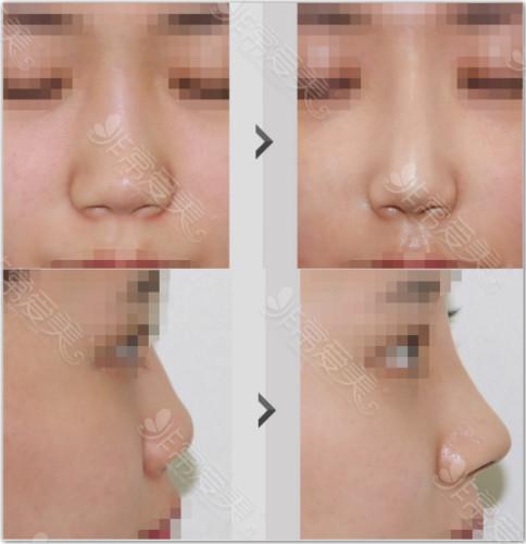 福鼻整形手术效果
