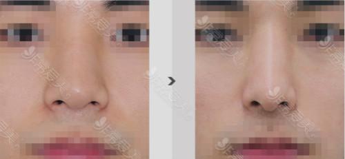 韩国鼻翼缩小手术案例对比