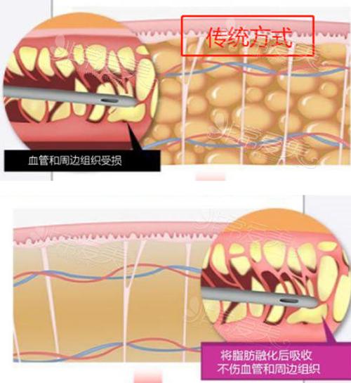 旋转动力吸脂系统与传统吸脂对比图