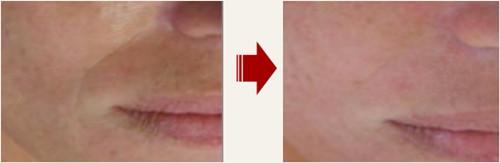 韩国童颜中心面部除皱前后对比图