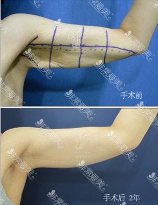 首尔slim外科医院切除减肥赘皮后的图片