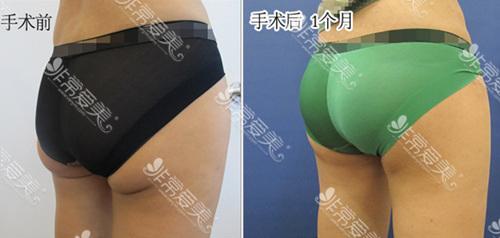 首尔slim外科医院臀部赘皮去除效果图