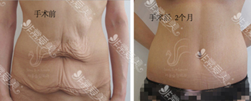 腹部切除减肥赘皮后的图片