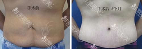 减肥后的赘皮怎么办