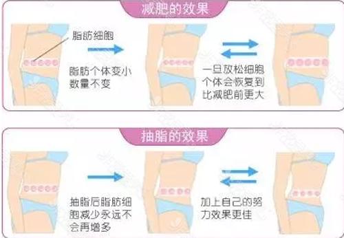 减肥与吸脂的区别示意图